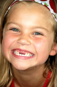 Girl Missing Two Teeth